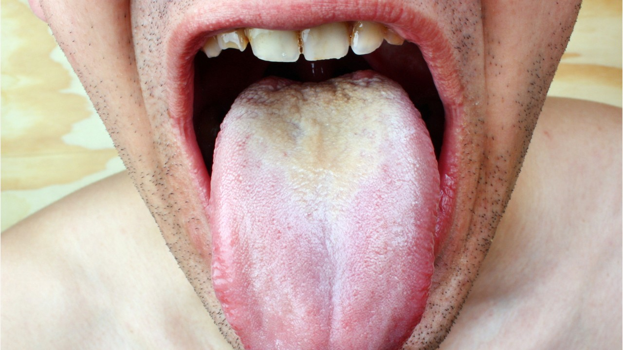 What Is Black Hairy Tongue Watch News Videos Online
