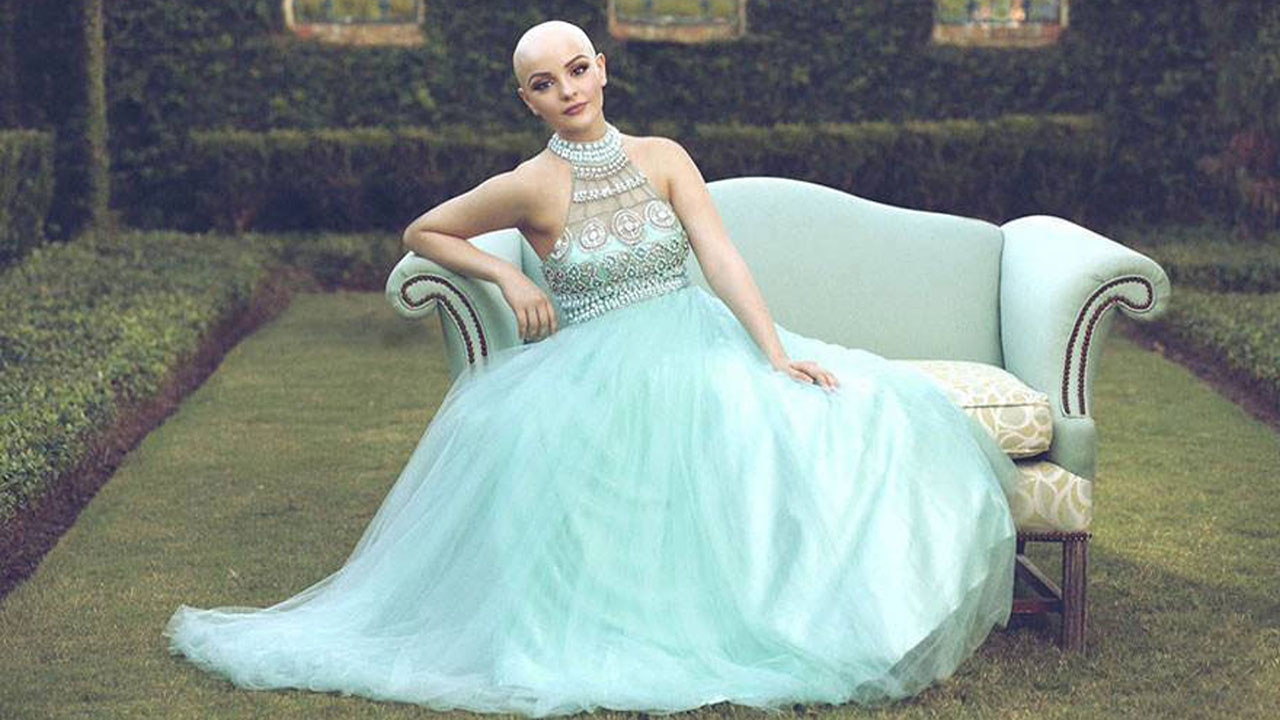 Teen cancer patient models in inspiring princess photo shoot | Watch ...