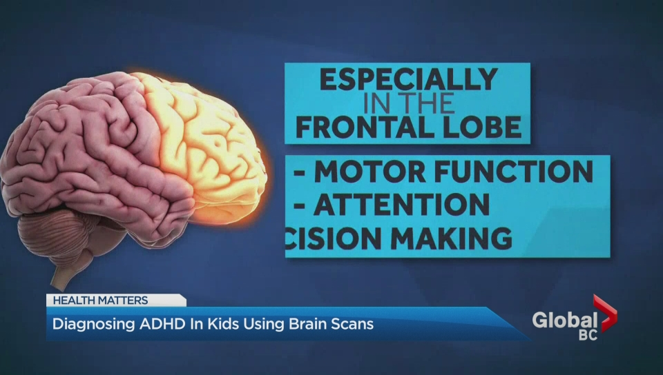 Brain Scans May Forecast Autism In High >> Diagnosing Adhd In Kids Using Brain Scans Watch News Videos Online