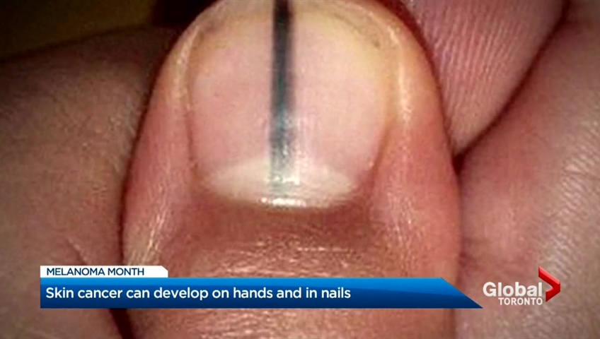 Skin cancer can develop on hands and around nails. | Watch News ...